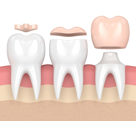 Animated dental crown compared with filling and onlay